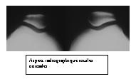 L'attribut alt de cette image est vide, son nom de fichier est 20090123_151226.jpg.